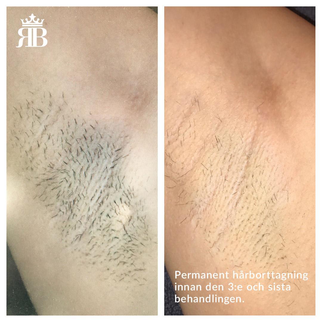 hårborttagning trollhättan